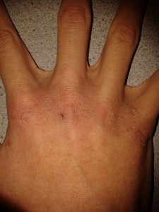 A hand showing dry skin