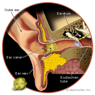 How earwax looks within the ear. Earwax Care Plan gives guidance how to alleviate earwax.