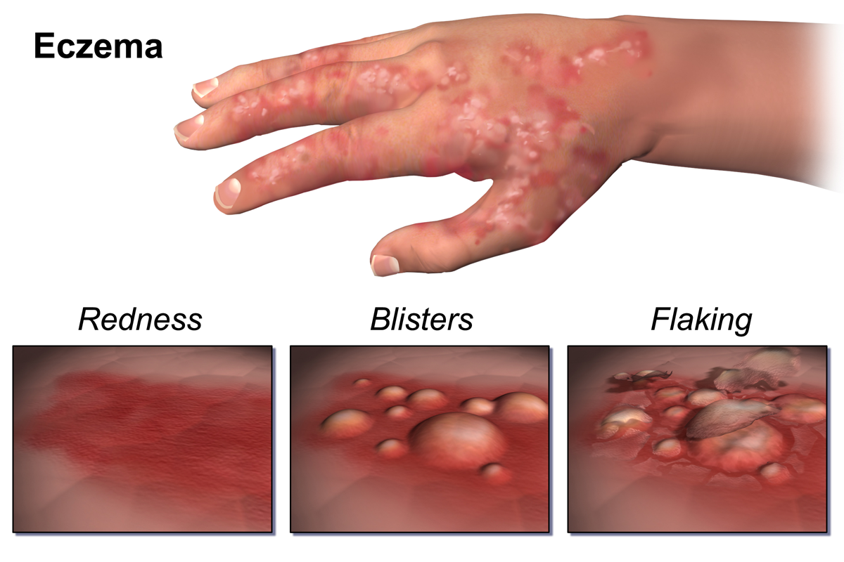 Examples of what eczema can look like. The Eczema Care Plan details the issues cause by the condition.